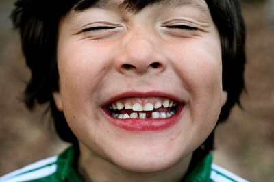 Denti bambini, i cibi più dannosi