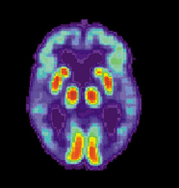 572px-PET_Alzheimer