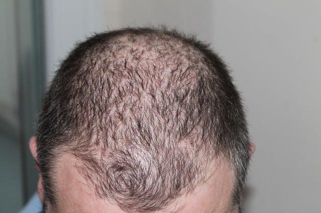 Perdita dei capelli e stress  un binomio molto comune 4b5a9e3373c8