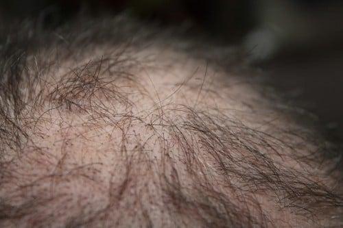 perdita-capelli